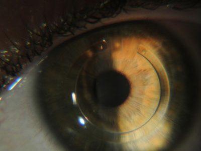 anel-intracorneano